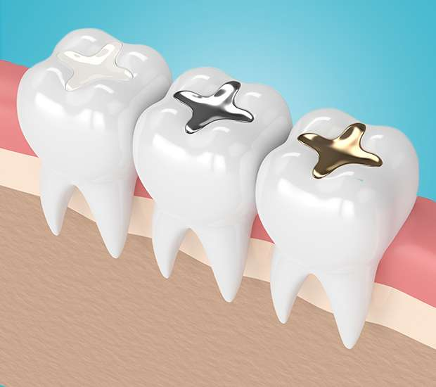 Clayton Composite Fillings
